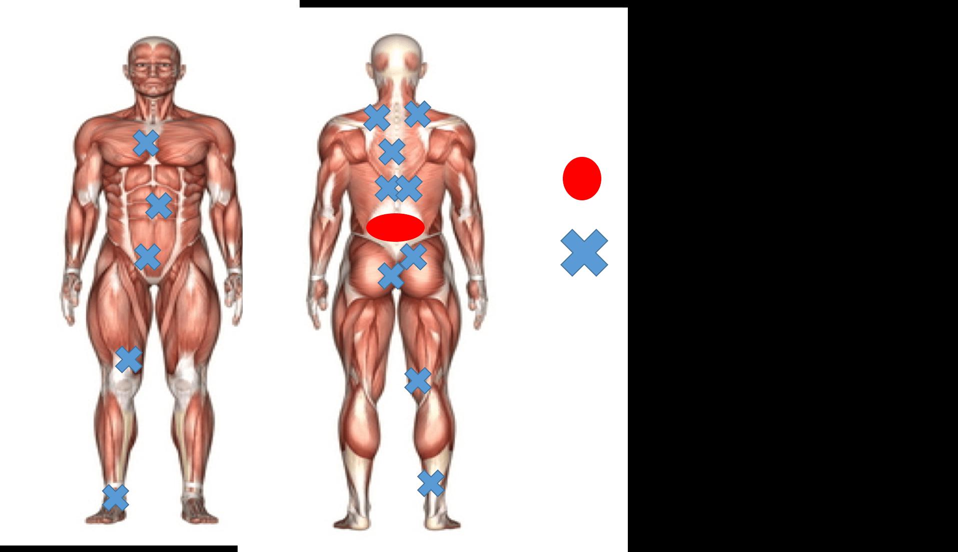 走ると痛いA選手筋膜